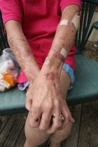 "###NEWS - HIV-positive - Ocala - CONTACT PHOTOGRAPHER 352-598-7976 - cell### A woman known only as ""Dee"" shows her arms that are covered with bruises due to low white cell count. She is HIV-positive, Friday afternoon, June 24, 2005, in Ocala, FL. (Jannet Walsh/Star-Banner)2005"